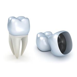 روکش دندان [object object] مراقبت های پس از درمان ریشه 84