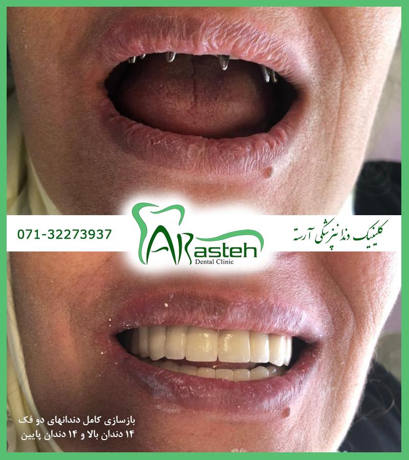 ایمپلنت در شیراز تصاویر قبل و بعد دندانپزشکی،قبل و بعد،before and after قبل و بعد درمان ax implant1