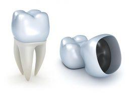 روکش دندان [object object] مراقبت های پس از درمان ریشه rokeshdandan 260x185  مطالب دندانپزشکی rokeshdandan 260x185