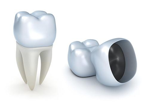 روکش دندان [object object] مراقبت های پس از درمان ریشه rokeshdandan 495x350