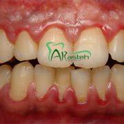 بیماری های لثه نشانه های مخفی بیماری های لثه نشانه های مخفی بیماری های لثه Gum disease 180x180