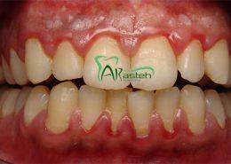 بیماری های لثه [object object] مراقبت های پس از درمان ریشه Gum disease 260x185  مطالب دندانپزشکی Gum disease 260x185