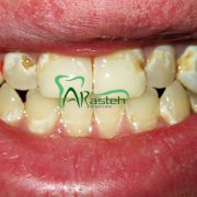 پوسیدگی دندان چه موادی باعث پیشگیری از پوسیدگی دندان ها می شوند؟ چه موادی باعث پیشگیری از پوسیدگی دندان ها می شوند؟ arasteh1456 180x180