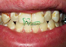پوسیدگی دندان [object object] مراقبت های پس از درمان ریشه arasteh1456 260x185  مطالب دندانپزشکی arasteh1456 260x185