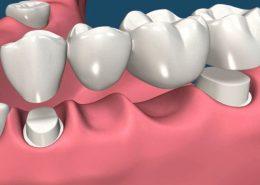 روکش های دندانی [object object] مراقبت های پس از درمان ریشه dental 260x185  مطالب دندانپزشکی dental 260x185