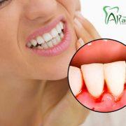 خونریزی لثه  دلایل خطرناک و شایع خونریزی لثه arasteh Bleeding gums 1 180x180