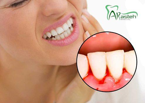 خونریزی لثه  دلایل خطرناک و شایع خونریزی لثه arasteh Bleeding gums 1 495x352