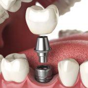 ایمپلنت آرسته  مراقبت های پس از ایمپلنت دندان implant 180x180