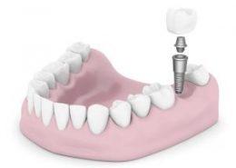 ایمپلنت آرسته [object object] مراقبت های پس از درمان ریشه implant index 260x185  مطالب دندانپزشکی implant index 260x185