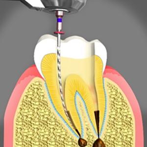 کانال ریشه [object object] مراقبت های پس از درمان ریشه root canal treatment