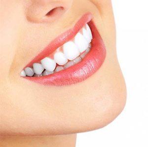 روش های خانگی سفید کردن دندان            300x298