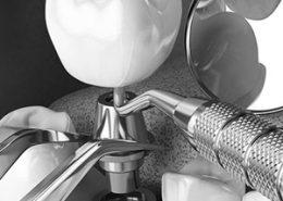 کاشت موفق ایمپلنت دندانپزشکی آراسته [object object] مراقبت های پس از درمان ریشه 3 260x185  مطالب دندانپزشکی 3 260x185