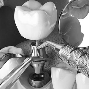 کاشت موفق ایمپلنت دندانپزشکی آراسته  سه قانون طلایی برای کاشت موفق ایمپلنت 3