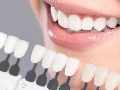 روکش دندان کلینیک دندانپزشکی آراسته  سه چالش پیش رو در انجام ونیر و راه حل مقابله با آن ها 4