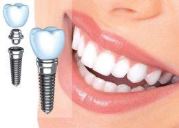 کلینیک دندانپزشکی آراسته [object object] مراقبت های پس از درمان ریشه 8 260x185  مطالب دندانپزشکی 8 260x185