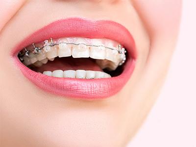 کلینیک دندانپزشکی آرسته در شیراز  ارتودنسی دندان 11