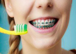 کلینیک دندانپزشکی آرسته [object object] مراقبت های پس از درمان ریشه 12 260x185  مطالب دندانپزشکی 12 260x185