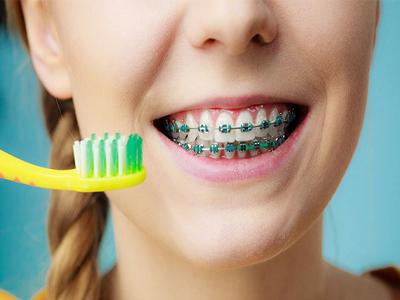 کلینیک دندانپزشکی آرسته  مراقبت های قبل و بعد از درمان ارتودنسی 12