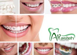کلینیک دندانپزشکی آرسته [object object] مراقبت های پس از درمان ریشه 13 260x185  مطالب دندانپزشکی 13 260x185