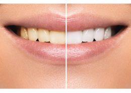 کلینیک دندانپزشکی آرسته [object object] مراقبت های پس از درمان ریشه 15 260x185  مطالب دندانپزشکی 15 260x185