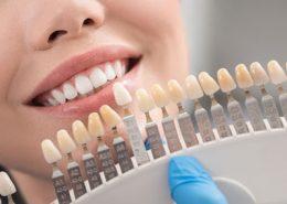 کلینیک تخصصی دندانپزشکی آرسته [object object] مراقبت های پس از درمان ریشه 16 260x185  مطالب دندانپزشکی 16 260x185