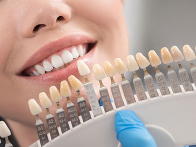 کلینیک تخصصی دندانپزشکی آرسته  روکش دندان 16