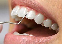 کلینیک تخصصی دندانپزشکی آرسته [object object] مراقبت های پس از درمان ریشه 20 260x185  مطالب دندانپزشکی 20 260x185