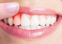 بیماری لثه [object object] مراقبت های پس از درمان ریشه gum 260x185  مطالب دندانپزشکی gum 260x185