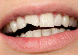 کلینیک دندانپزشکی آرسته [object object] مراقبت های پس از درمان ریشه 23 260x185  مطالب دندانپزشکی 23 260x185