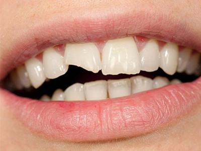 کلینیک دندانپزشکی آرسته  دلایل شکستگی و ترک خوردگی دندان ها 23