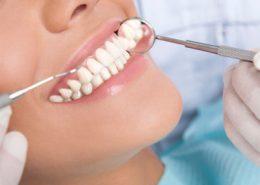 دندانپزشکی آرسته در شیراز [object object] مراقبت های پس از درمان ریشه 27 260x185  مطالب دندانپزشکی 27 260x185