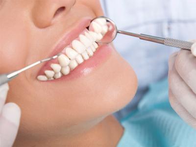 دندانپزشکی آرسته در شیراز  بیماری های لثه 27