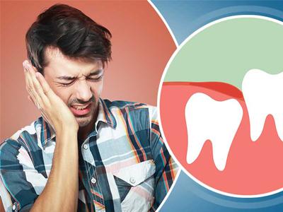 دندانپزشکی آرسته در شیراز  مشکلاتی که دندان عقل ایجاد می کند 28