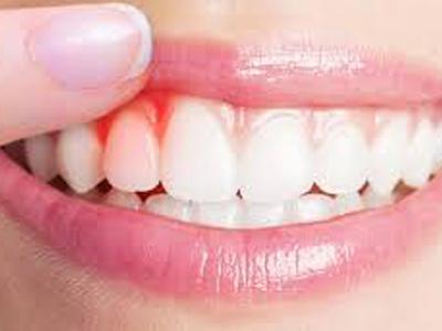 دندانپزشکی آرسته در شیراز  نشانه های بیماری های لثه 30