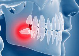دندانپزشکی آرسته در شیراز [object object] مراقبت های پس از درمان ریشه 35 260x185  مطالب دندانپزشکی 35 260x185