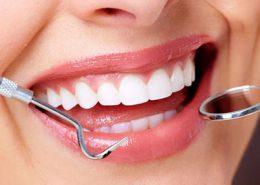دندانپزشکی آرسته در شیراز [object object] مراقبت های پس از درمان ریشه 37 260x185  مطالب دندانپزشکی 37 260x185