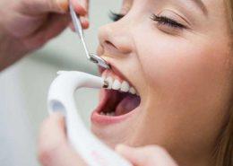دندانپزشکی آرسته در شیراز [object object] مراقبت های پس از درمان ریشه 32 260x185  مطالب دندانپزشکی 32 260x185