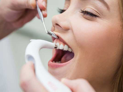 دندانپزشکی آرسته در شیراز  سفید کردن دندان با لیزر 32