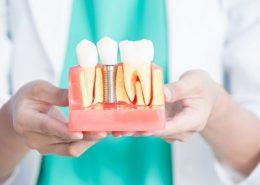 دندانپزشکی آرسته در شیراز [object object] مراقبت های پس از درمان ریشه 33 260x185  مطالب دندانپزشکی 33 260x185