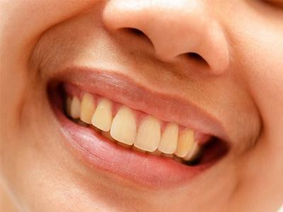 دندانپزشکی آرسته در شیراز  عوامل بدرنگی های لثه 34