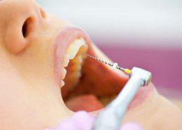 دندانپزشکی آرسته در شیراز [object object] مراقبت های پس از درمان ریشه 54 260x185  مطالب دندانپزشکی 54 260x185