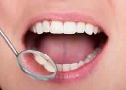 دندانپزشکی آرسته در شیراز [object object] مراقبت های پس از درمان ریشه 56 260x185  مطالب دندانپزشکی 56 260x185