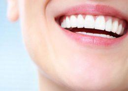 دندانپزشکی آرسته در شیراز [object object] مراقبت های پس از درمان ریشه 57 260x185  مطالب دندانپزشکی 57 260x185