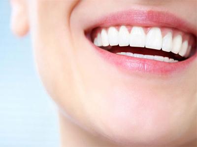 دندانپزشکی آرسته در شیراز مشکلات دهان و دندان 4 مورد از مشکلات دندانی که باید بدانید 57