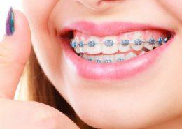دندانپزشکی آرسته در شیراز [object object] مراقبت های پس از درمان ریشه 58 260x185  مطالب دندانپزشکی 58 260x185