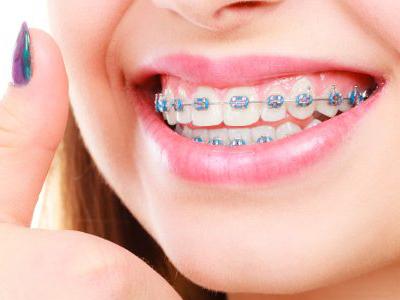 دندانپزشکی آرسته در شیراز مشکلات دهان و دندان 4 مورد از مشکلات دندانی که باید بدانید 58
