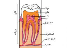دندانپزشکی آرسته در شیراز [object object] مراقبت های پس از درمان ریشه 63 260x185  مطالب دندانپزشکی 63 260x185