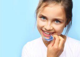 دندانپزشکی آرسته در شیراز [object object] مراقبت های پس از درمان ریشه 66 260x185  مطالب دندانپزشکی 66 260x185