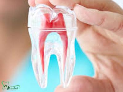 دندانپزشکی آرسته در شیراز درمان ریشه در شیراز اندو و درمان ریشه 8