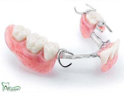 دندانپزشکی آرسته در شیراز پروتز ثابت و متحرک پروتز ثابت و متحرک 13